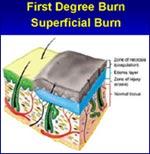 First Degree Burn                         Superficial Burn