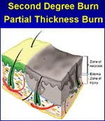 Second Degree Burn                         Partial Thickness Burn