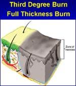 Third Degree Burn                         Full Thickness Burn